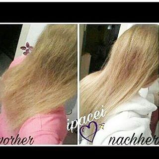 Kann jeder mensch lange haare bekommen